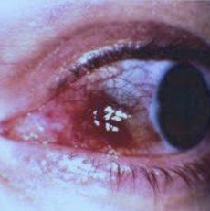 Sida y ojo