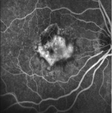 Angiografía Retinal con Fluoresceina